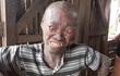 Mắc bệnh lạ, chàng trai trẻ bị dân làng xa lánh vì ngoại hình ghê rợn