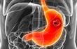 Trắc nghiệm: Bạn có nguy cơ bị ung thư dạ dày không?