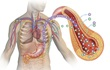 Phát hiện biến thể gen tăng nguy cơ cả 2 bệnh tiểu đường và tim mạch