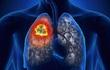 Dấu hiệu nhận biết và cách điều trị bệnh ung thư phổi