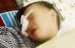 Nghệ An: Xót xa bé gái 2 tuổi bị gà chọi mổ mù một mắt