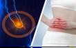 3 dấu hiệu sớm của viêm ruột thừa: Ai cũng phải nắm vững kẻo 'hối không kịp'