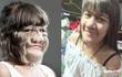 Thái Lan: Cô gái 17 tuổi giữ kỷ lục nhiều lông nhất thế giới khiến mọi người kinh ngạc khi cạo sạch lông mặt!