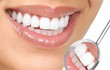 8 loại thực phẩm bạn chịu khó ăn sẽ khiến răng sạch bong, trắng bóc