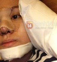 Khuôn mặt Bà Tưng sưng tấy sau phẫu thuật thẩm mỹ