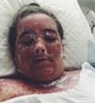 Cô gái bị bỏng 98% do sử dụng thuốc tẩy trắng da