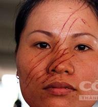 Công an nhận đơn đề nghị khởi tố vụ án 2 mẹ con bị hàng xóm đánh, rạch mặt
