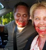 Cặp đôi bị cảnh sát truy đuổi vì máu me đầy mặt nhưng hóa ra là… nhầm tai hại thế này đây