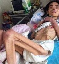 Bi kịch: Mẹ chồng tiếp tay cho con trai cặp bồ, ngược đãi con dâu còn da bọc xương