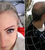 Sự thật đau đớn đằng sau căn bệnh lạ khiến người phụ nữ giật trụi tóc, chảy máu đầu