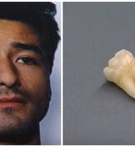 Chiếc răng khôn lần ra kẻ đốt xác nữ người mẫu nghiệp dư