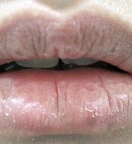 Đôi môi khô dù đã dùng son dưỡng và uống đủ nước: Bệnh không được lơ là!