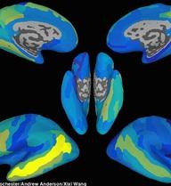 Các nhà khoa học đã có thể tạo ra cỗ máy có thể đọc được suy nghĩ của bạn, tỷ lệ chính xác lên tới 70%