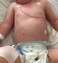 """Bé 1 tuổi tử vong sau 24 giờ sốt và phát ban: Báo động căn bệnh """"giết"""" trẻ trong vài giờ"""