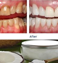 """""""Thuốc"""" ngừa bệnh răng miệng 3.000 năm tuổi mà sao Hollywood tin dùng lại dễ kiếm ở VN"""