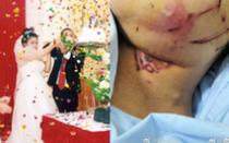 Tai nạn khiến ngày cưới hóa đám tang: Bố cô dâu thiệt mạng, 11 người bị thương, nguyên nhân đến từ một nghi thức rất thường thấy ở đám cưới