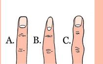 Hình dáng ngón tay trỏ nói gì về bạn?