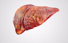 """6 dấu hiệu cảnh báo gan đang """"yếu"""" đi từng ngày: Bạn nên biết trước khi quá muộn"""