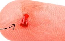 Có những dấu hiệu dưới đây chứng tỏ bạn đang thiếu máu trầm trọng, đừng chủ quan
