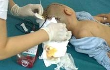 Bé trai gần 4 tuổi não bị tụ máu khi đi học ở trường mầm non