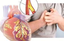 Phòng suy tim do bệnh mạch vành: Việc cần làm ngay trước khi quá muộn