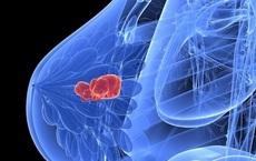 Chuyên gia hàng đầu khuyến cáo: Muốn ung thư không gõ cửa, cần tránh xa 4 điều