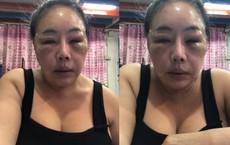 """Nữ đại gia Thái Lan """"đổi chồng như thay áo"""" năm nào gây sốc với gương mặt sưng vù vì bị chồng mới đánh đập?"""