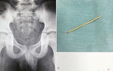 Bé 9 tuổi kêu đau, nửa tháng sau mới phát hiện bị tăm dài 8cm xuyên mông