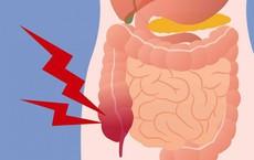 Ruột có sạch thì cơ thể mới khỏe: 7 thực phẩm giúp thải độc ruột hiệu quả ai cũng nên ăn