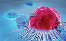 Dấu hiệu cảnh báo sớm 13 bệnh ung thư: Dù chỉ có 1 dấu hiệu cũng nên khám ngay