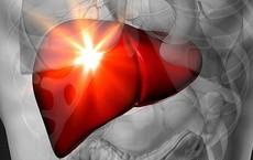 9 dấu hiệu cho thấy gan của bạn đang chứa đầy chất độc