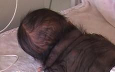 Lén uống thuốc thay đổi giới tính thai nhi, mẹ sinh ra con đầy lông lá