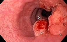 Dấu hiệu sớm nhất của ung thư ruột nhiều người vô tình bỏ qua