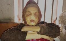"""Căn bệnh quái ác """"ăn"""" mòn mắt, mũi, môi của cụ bà ở Thái Bình"""