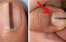 Cảnh giác ngay khi thấy trên móng tay có dấu hiệu bất thường này