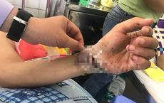 Nối liền bàn tay cho một nam bệnh nhân sau nhiều giờ bị chém đứt lìa
