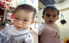 Bé gái 14 tháng tuổi bị tụ máu hai mắt sau khi từ cơ sở mầm non về