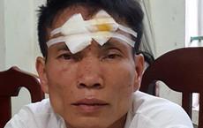 Nguyên nhân vụ truy sát chém 3 người thương vong trước giờ cháu đi đón dâu