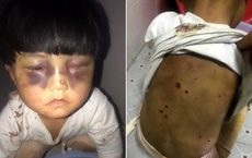 Bé gái 4 tuổi bị bố đánh bầm tím mắt, lưng bị dí tàn thuốc lá, xích trong nhà vệ sinh