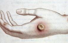 """Cậu bé đột nhiên mắc phải căn bệnh lạ tưởng đã """"tuyệt chủng"""" từ thế kỷ 18"""