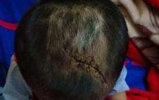 """Bình Dương: Nghi vấn cháu bé 3 tuổi bị mẹ ruột và """"cha hờ"""" bạo hành dã man"""