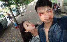 """Nghĩa """"bảo kê"""" phim Quỳnh búp bê: Đánh Thanh Hương đến bật máu môi, diễn xong phải xin lỗi"""