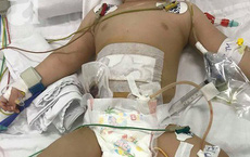 TP.HCM: Bé trai 11 tháng tuổi bị mẹ ruột dùng dao đâm nhiều nhát vào bụng nguy kịch