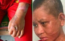 """Cô gái tố bị chủ tra tấn: Bà chủ """"dùng cả cây gỗ đã đóng đinh đập lên đầu, lên mặt"""""""
