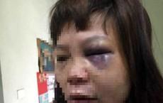 Chồng đưa vợ lên đồi đánh đập dã man, cắt tóc, cắt cẳng chân