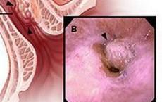 Ung thư thực quản - bệnh hay gặp ở người hút thuốc và uống rượu: 3 dấu hiệu cần khám ngay
