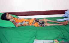 Xót xa bức ảnh bé gái da bọc xương và sự thật tàn khốc phía sau khiến 10 triệu người chết đói