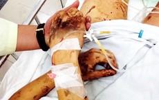 """Vụ Việt kiều bị tạt axit, cắt gân chân: """"Hai người đàn ông đè người Tom xuống và cắt 3 nhát"""""""
