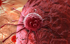 Hy vọng mới cho bệnh nhân ung thư vú: Có thể biến tế bào ung thư vú thành tế bào mỡ vô hại