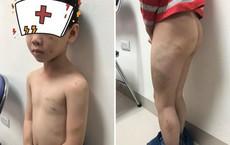 Bé trai bị bầm tím khắp người: Con kể bị mẹ kế đánh bằng gậy và dép, bố tự nhận do mình làm